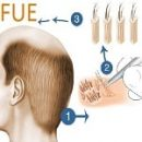 FUE-Follicular-Unit-Extraction-in-Iran
